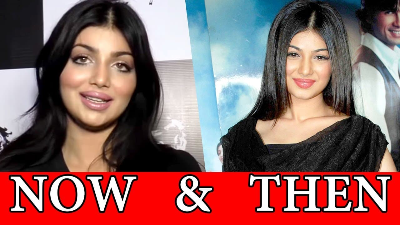 Plastic Surgery Celebrities Before And After 1