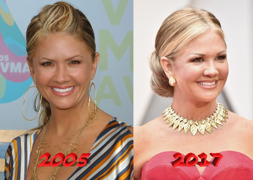 Nancy Odell Plastic Surgery Before And After 1
