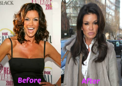 Celebrities After And Before Plastic Surgery 1