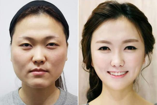 Korean Plastic Surgery Face Before And After 1