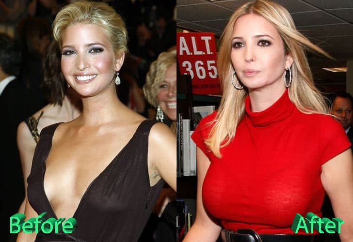Plastic Surgery Before And After New Orleans 1