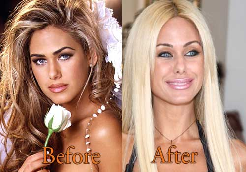 Shauna Sand Before And After Plastic Surgery 1