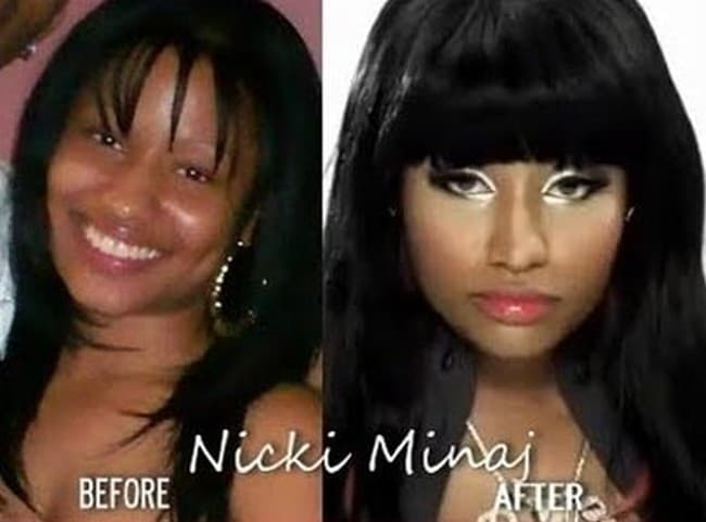 Nikki Minja Before And After Plastic Surgery 1