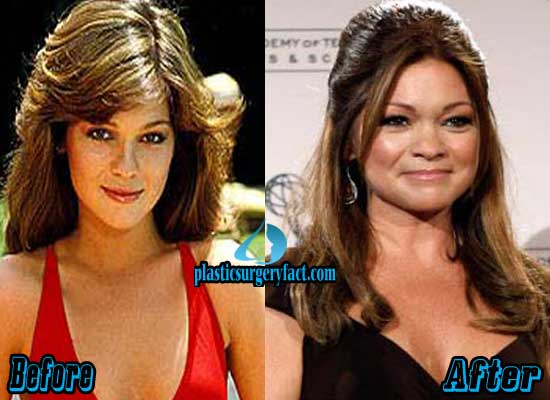 Ann Margret Plastic Surgery Before And After 1