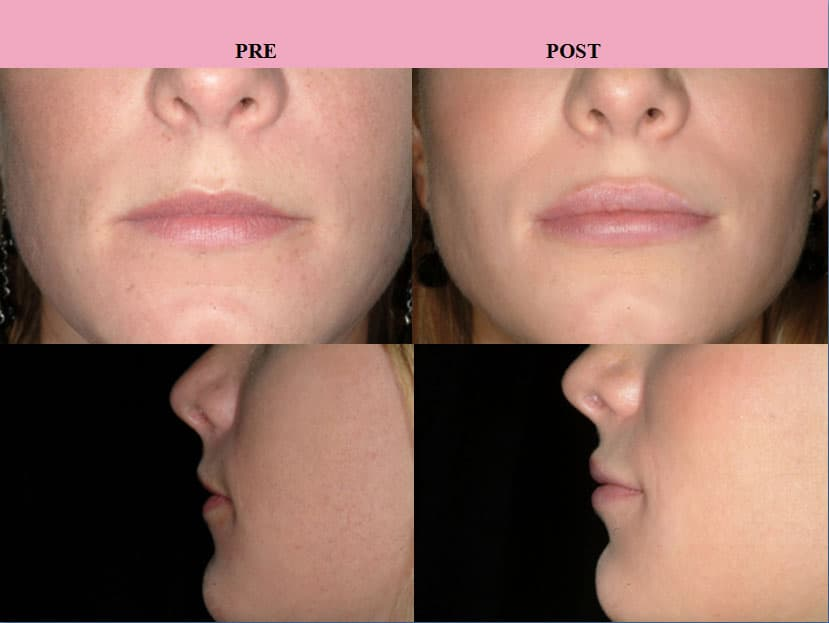 Appointment Before Plastic Surgery Procedure 1