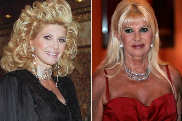 Before And After Plastic Surgery Ivana Trump 1