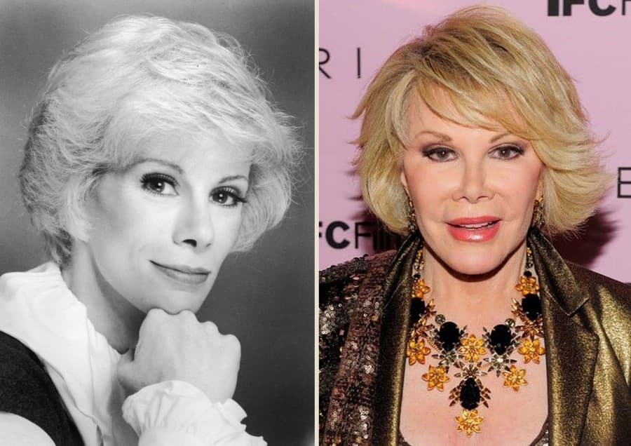 Joan Rivers Plastic Surgery Before And After 1