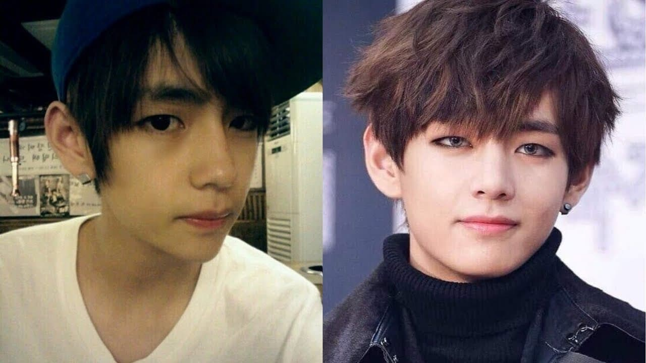Korean Eyes Before And After Plastic Surgery 1