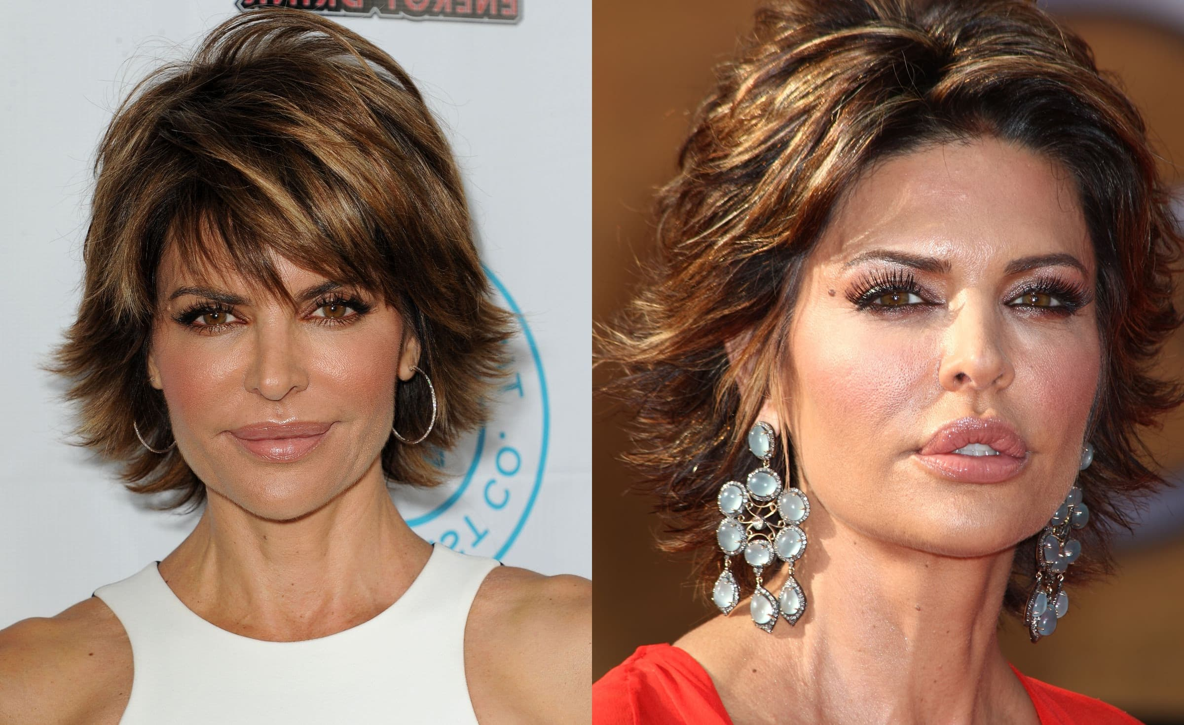 Pictures Of Lisa Ray Before Plastic Surgery 1