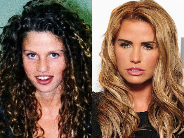 Plastic Surgery Before And After Katie Price 1