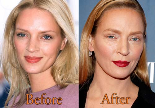 Uma Therman Before And After Plastic Surgery 1