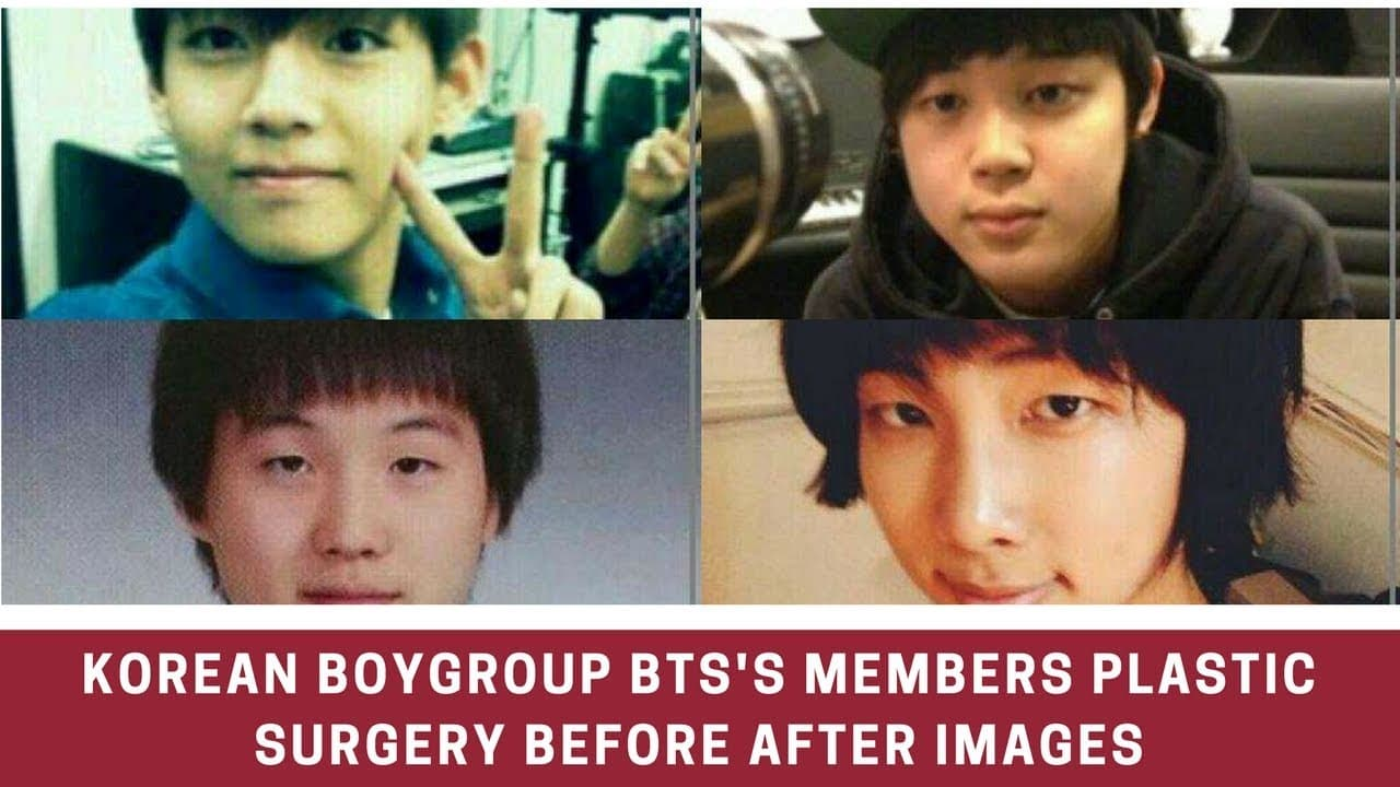 Bts Members Plastic Surgery Before And After 1