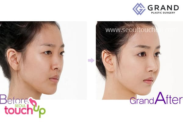 Best Plastic Surgery Before And After Korean 1