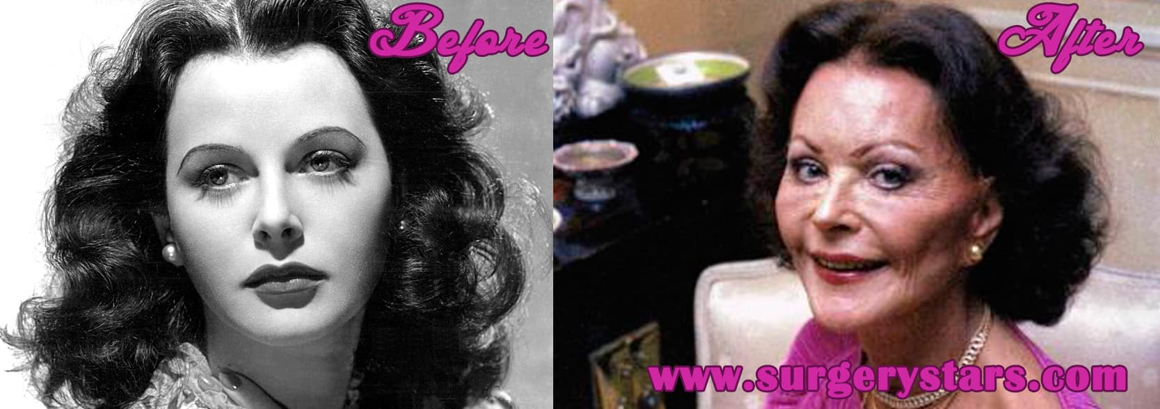 Current Trends Plastic Surgery Before After 1