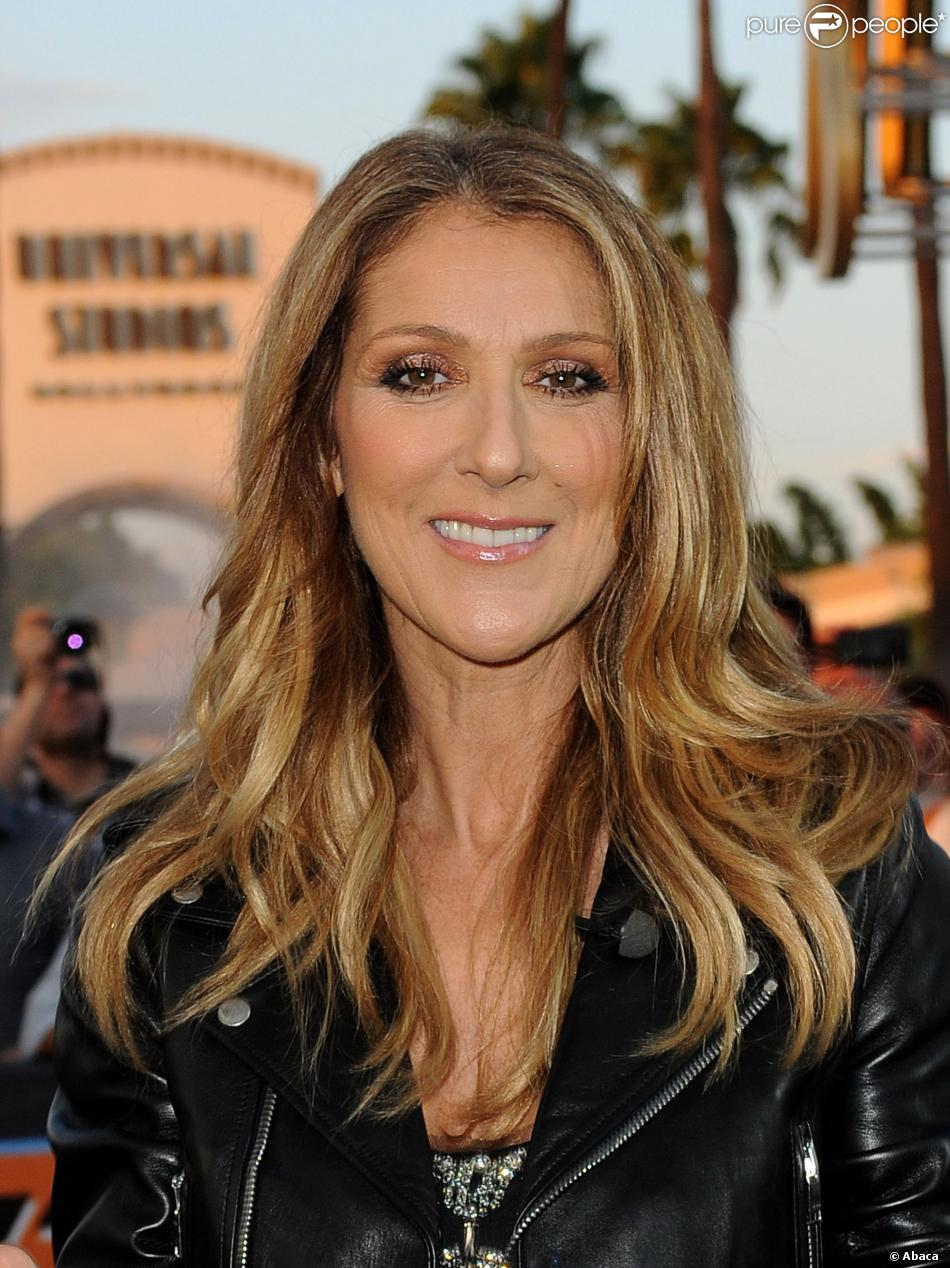 Celin Dion Before And After Plastic Surgery 1