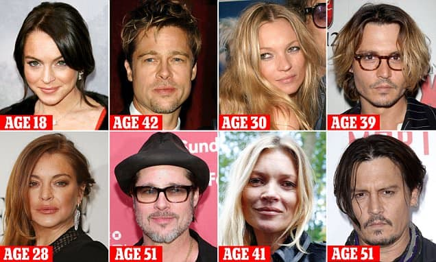 Plastic Surgery Before After Hollywood Stars 1