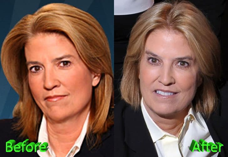 Monica Crowley Before And After Plastic Surgery photo - 1