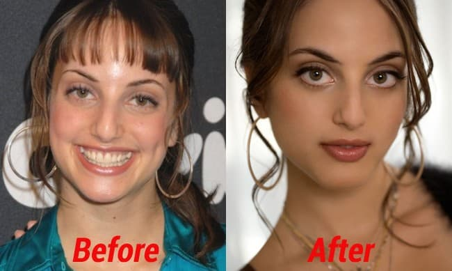 Alexa Ray Joel Plastic Surgery Before And After photo - 1