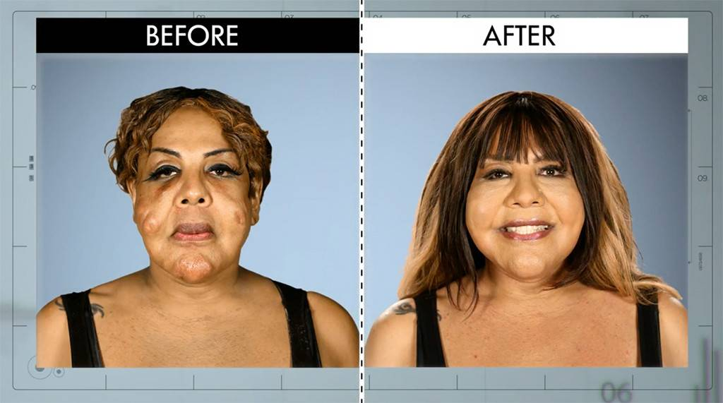 Botched Plastic Surgery Cement Before And After photo - 1