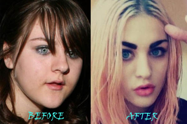 Frances Cobain Plastic Surgery Before And After photo - 1