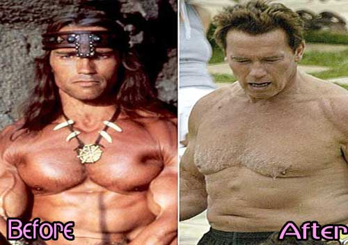 Schwarzenegger Before And After Plastic Surgery photo - 1