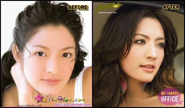 Thai Celebrity Plastic Surgery Before And After photo - 1