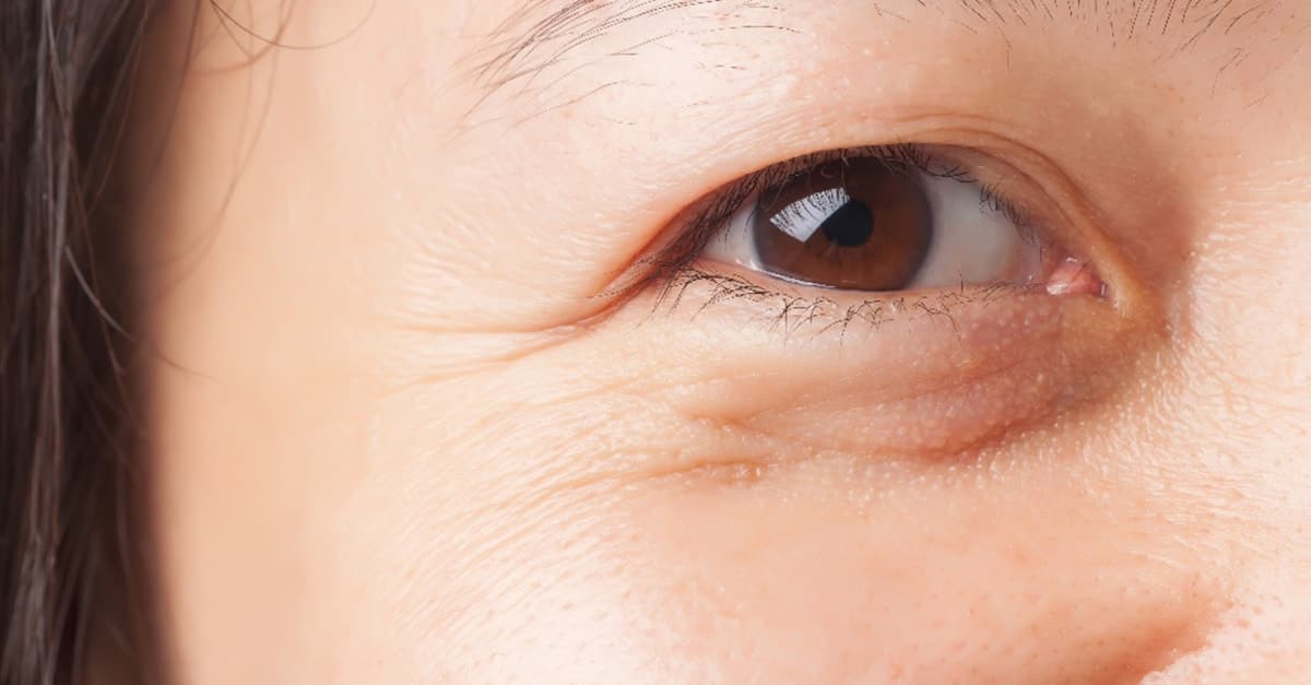 removal of bags under eyes with plastic surgery photo - 1