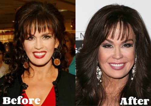 Marie Osmond Plastic Surgery Before And After 1