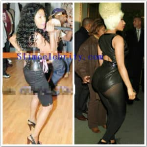 Before And After Plastic Surgery Butt 1