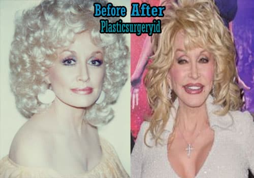 Dolly Parton Before And After Plastic Surgery 1