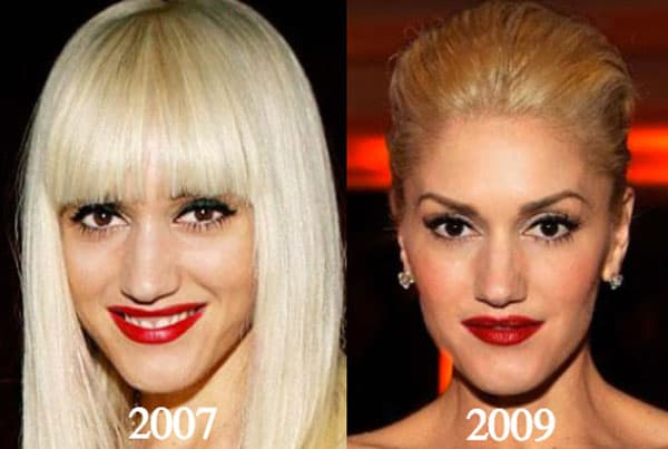 Gwen Stefani Before And After Plastic Surgery 1