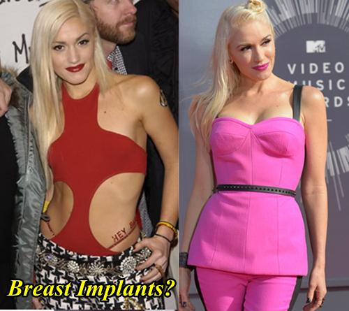 Gwen Stefani Plastic Surgery Before And After 1