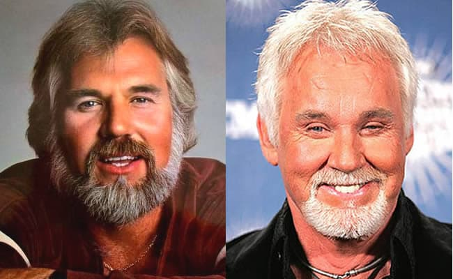 Kenny Rogers Before And After Plastic Surgery 1