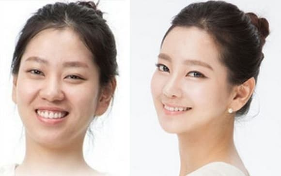 Korean Plastic Surgery Before And After Twins 1