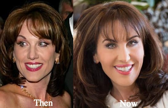 Robin Mcgraw Before And After Plastic Surgery 1