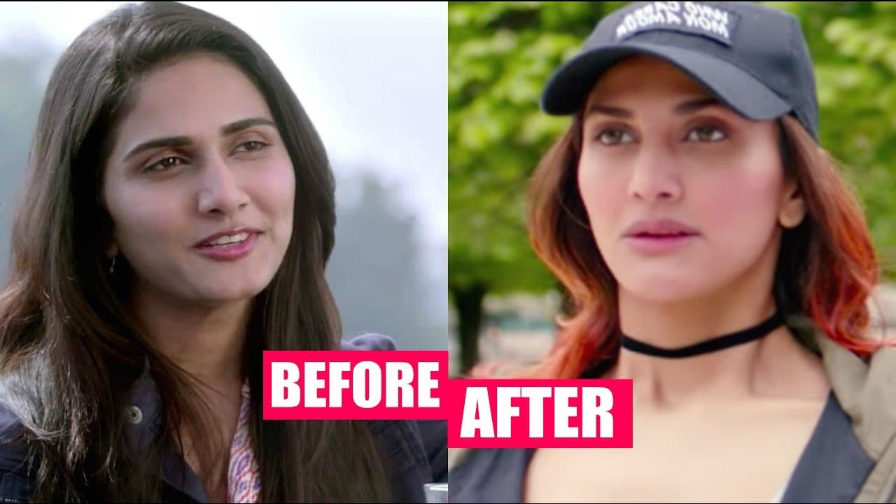 Vaani Kapoor Before And After Plastic Surgery 1
