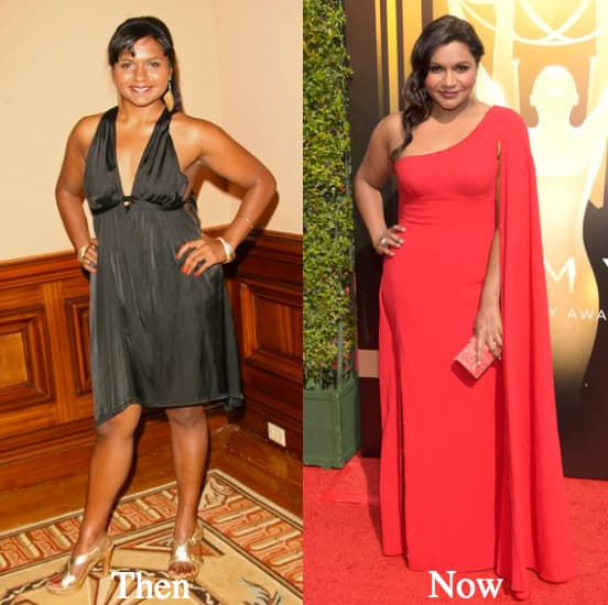 Mindy Kaling Before And After Plastic Surgery 1