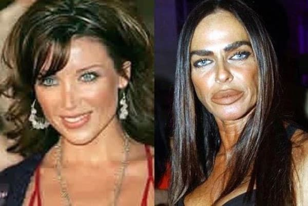 Awful Plastic Surgery Before And After Photos 1