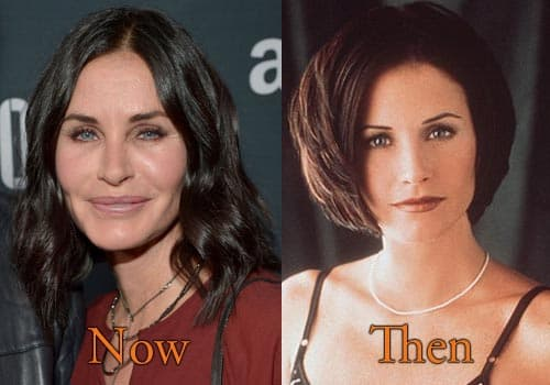 Courtney Cox Plastic Surgery Before And After 1