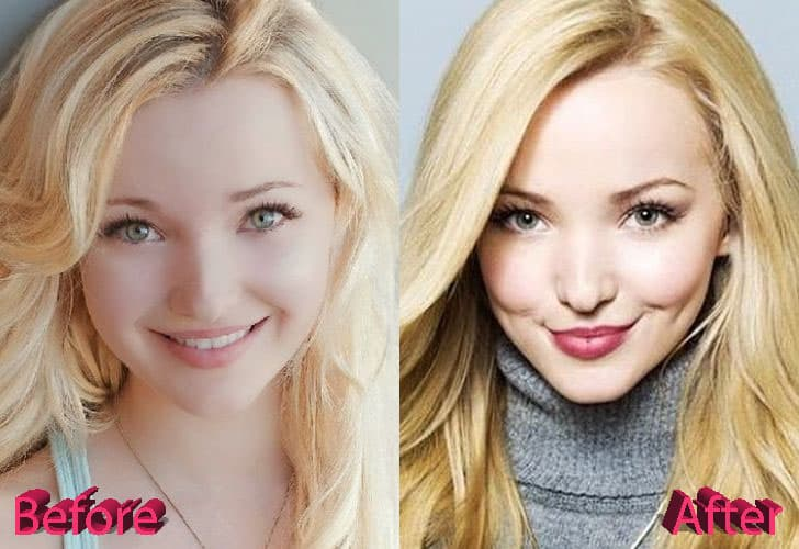Dove Cameron Before And After Plastic Surgery 1