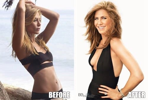 Jennifer Aniston Plastic Surgery Before After 1