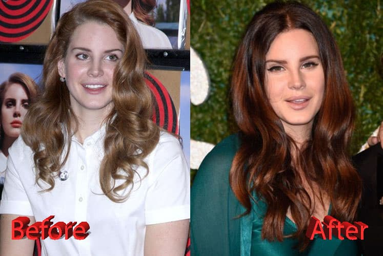 Lana Del Rey Before And After Plastic Surgery 1