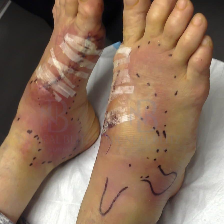 Plastic Foot Surgery Before And After 1