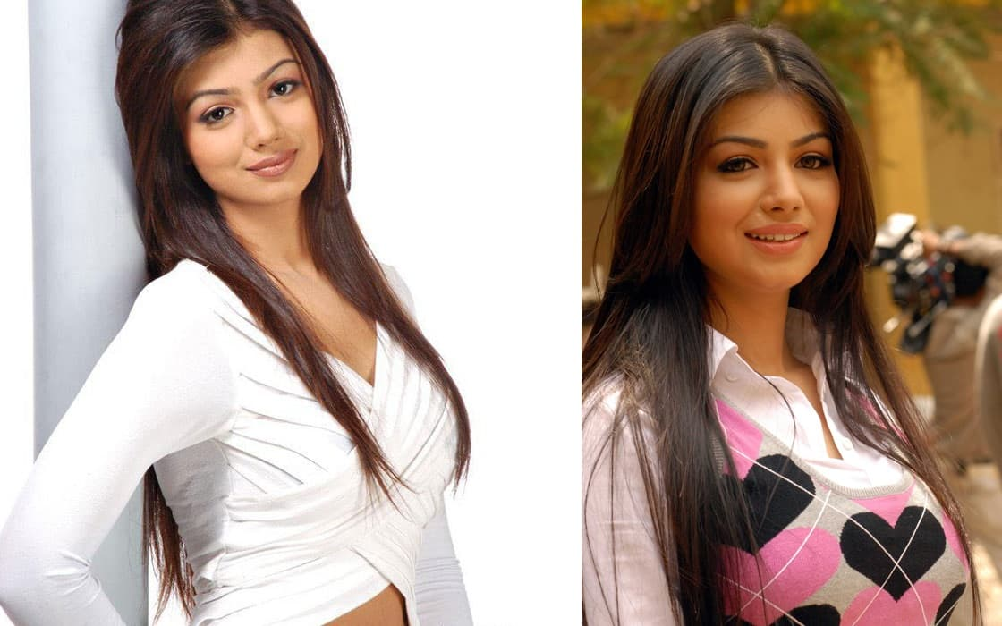 Ayesha Takia After And Before Plastic Surgery 1
