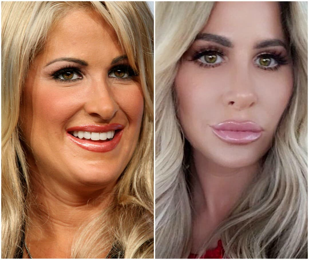 Alexis Real Housewives Before Plastic Surgery 1