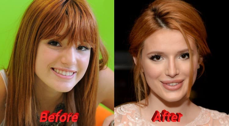 Bella Thorne Before And After Plastic Surgery 1