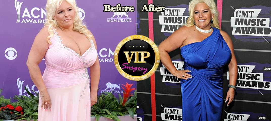 Beth Chapman Plastic Surgery Before And After 1