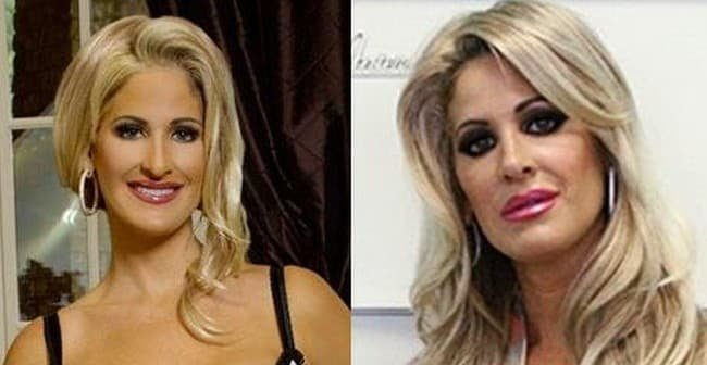 Kim Biermann Before And After Plastic Surgery 1