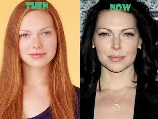 Laura Prepon Plastic Surgery Before And After 1