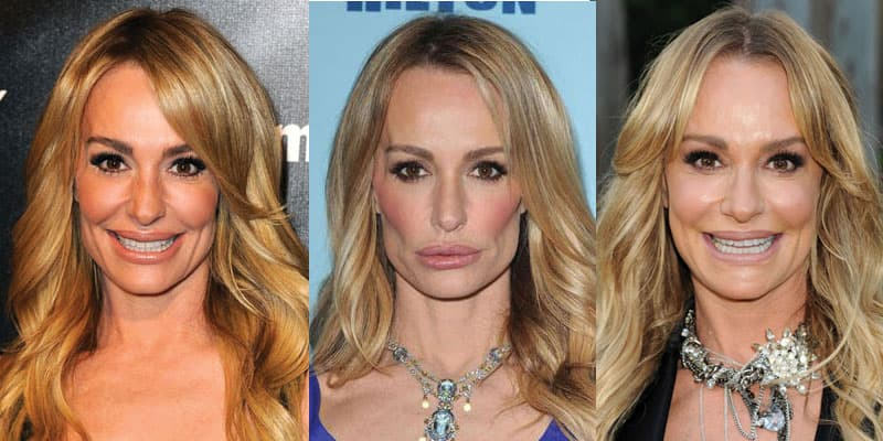 Photo Taylor Armstrong Before Plastic Surgery 1